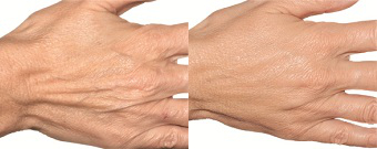 hand_before_after